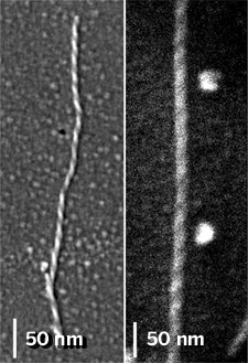 SEM images of amyloid fibers.