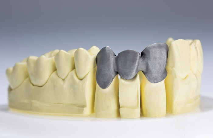 New Materials Take A Bite Out Of Tooth Decay August 1 2016 Issue
